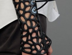 Do You Think this 3-D Printed Cast is the Future of Fixing Broken Bones?